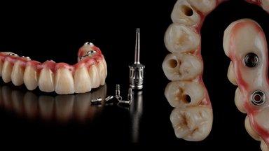 Millised on hammaste proteesimise võimalused?