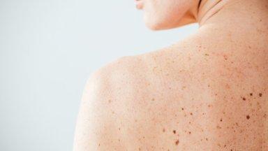Ei mingeid ohumärke nahal! Naisel diagnoositi melanoom, mis levis kopsudesse, silmadesse ja neerudesse