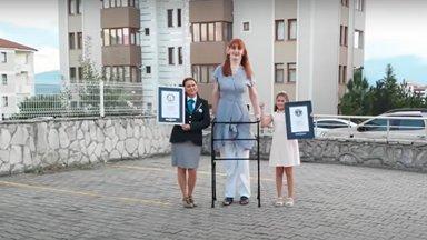 ФОТО   24-летняя жительница Турции признана самой высокой женщиной в мире